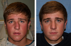 Changes Made to the Nose During Rhinoplasty