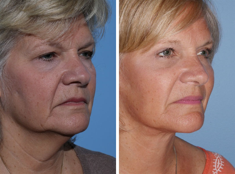 Face Lift Cosmetic Surgery in Chicago, IL