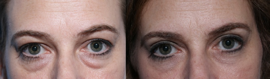 Chicago Blepharoplasty Eyelid Lift Surgery