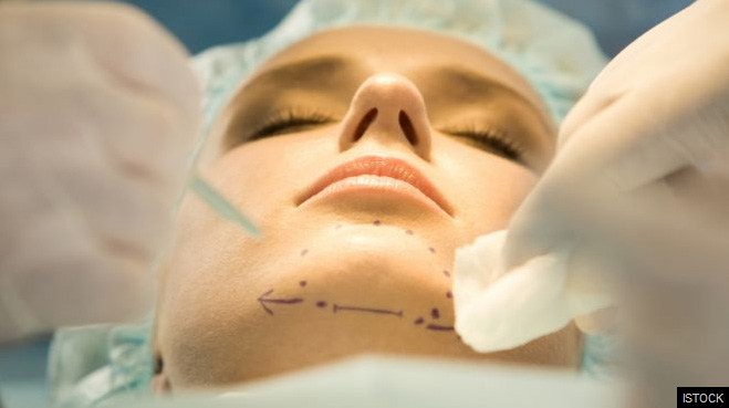 Chin implant surgery skyrockets in US