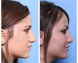 Rhinoplasty Chicago, IL