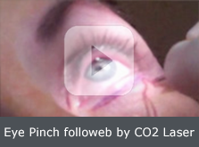 Eye pinch followed by CO2