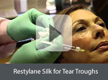 Restylane Silk for Tear Troughs