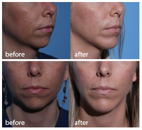 Chin Augmentation – Chicago Facial Surgery