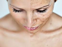 How to treat Melasma