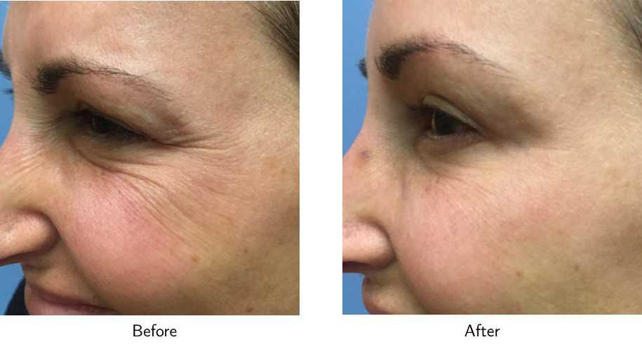 Chicago Botox® Before and After Photos - Naperville Plastic